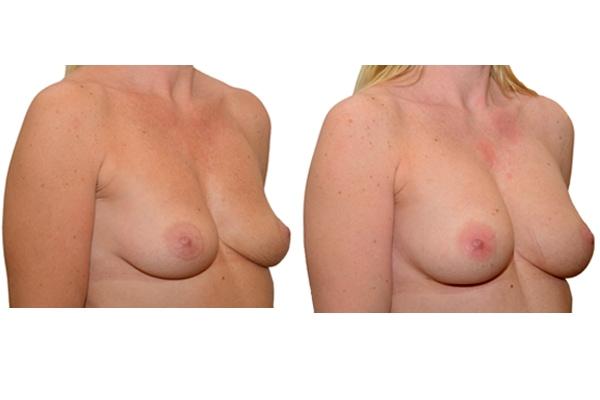 Brustvergroesserung nach 2 Eigenfetttransplantationen vorher nachher