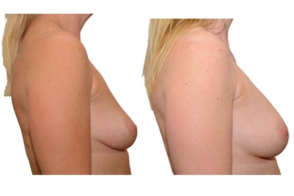 Brustvergroesserung nach 2 Eigenfetttransplantationen 1b
