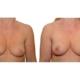 Brustvergroesserung Nach 2 Eigenfetttransplantationen 1c
