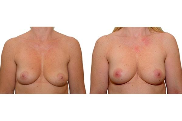 Ergebnis einer Brustvergroesserung nach 2 Eigenfetttransplantationen.