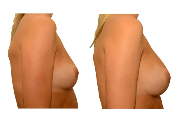 Ergebnis nach einer natürlichen Brustvergroesserung nach 3 Eigenfetttransplantationen.