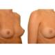Brustvergroesserung Nach 3 Eigenfetttransplantationen 1b