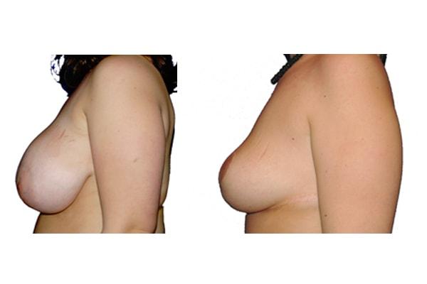 Symmetrieangleichung und Brust Reduktionsplastik von der Seite links