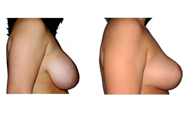 Symmetrieangleichung und Brust Reduktionsplastik von der Seite rechts