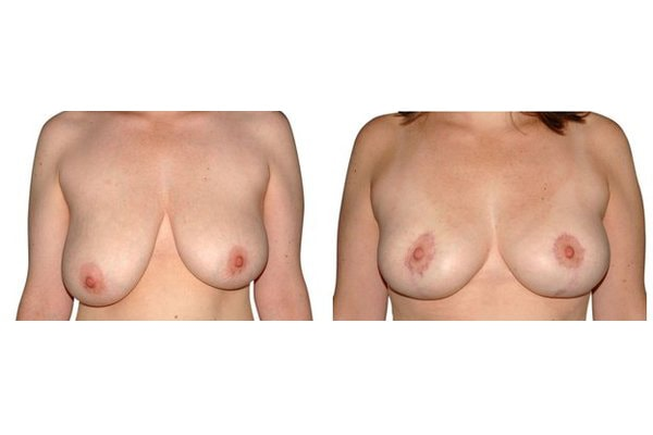 Ergebnis einer Mammareduktion (Verkleinerung der Brust)