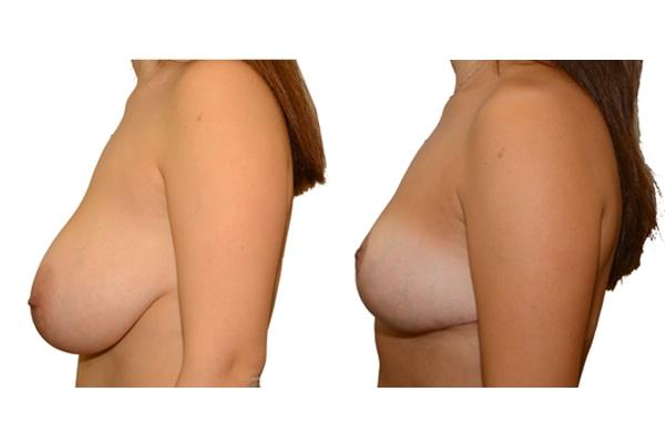 Brustverkleinerung 1a