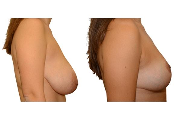 Vorher Nachher Bild einer Verkleinerung der Brust.