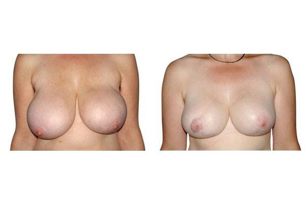 Vorher Nachher einer Patientin mit Brustverkleinerung
