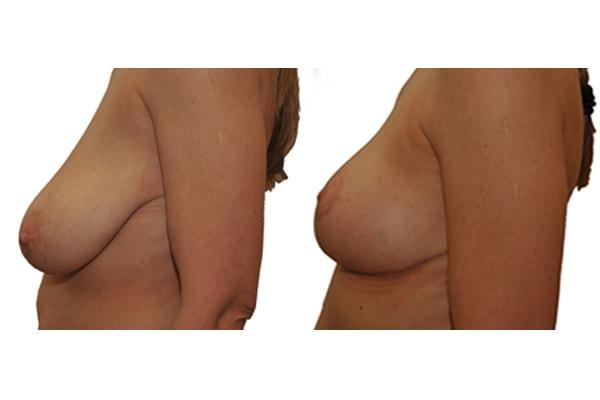 Beidseitige Brustverkleinerung Ergebnis und Ausgangssituation