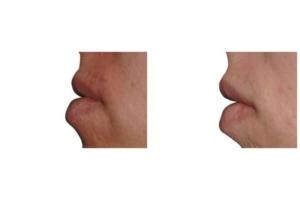 Eigenfett zur Lippenvergrößerung