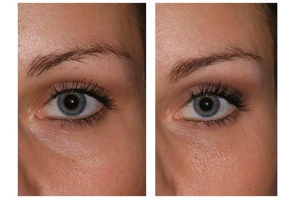 Eigenfett zur Korrektur der Augenringe