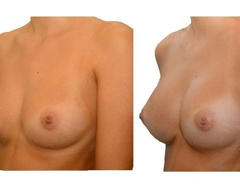 Eigenfettmit PRP Anreicherung Brustvergroesserung 3 Behandlungen
