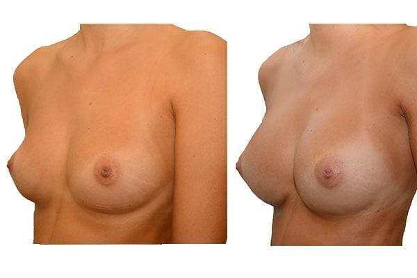 Nach 3 Brustvergrößerungen mit Eigenfett und PRP Anreicherung