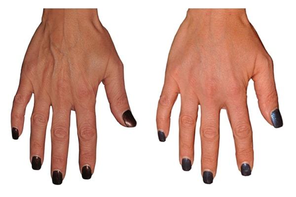 Eigenfetttransplantation an den Händen
