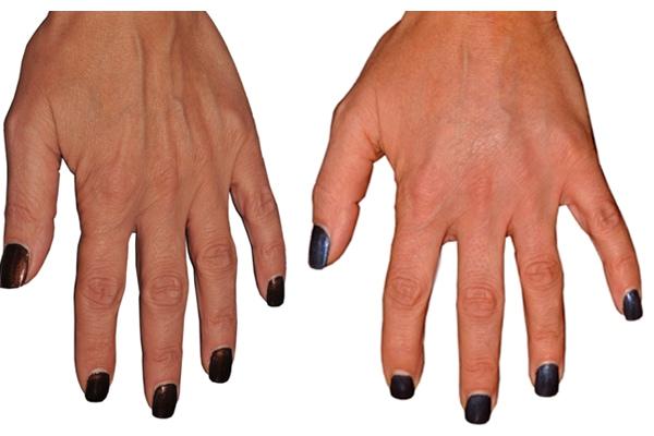 Ergebnis schöner, glatter Hände durch Eigenfetttransplantation an den Händen.