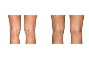 Fettabsaugung an der Innenseite der Knie