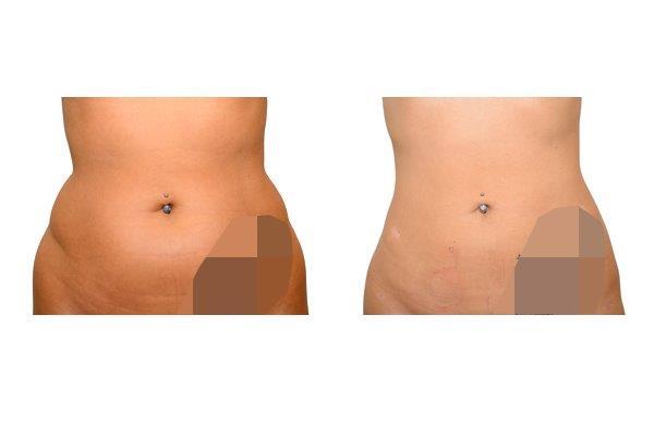 Fettabsaugung vor und nach der Operation.