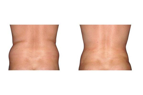 Fettabsaugung an Bauch und Hüften