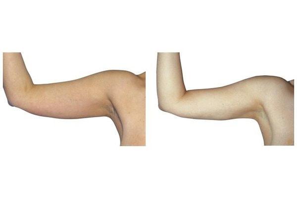 Fettabsaugung an den Oberarmen