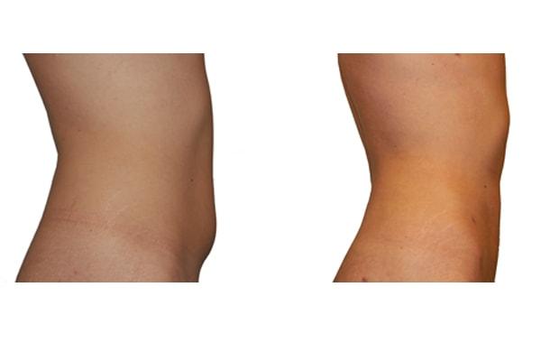 Fettabsaugung Bauch und Hüften vorher nachher