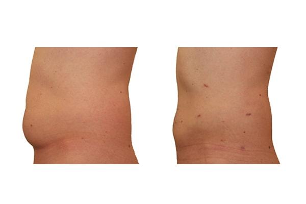 Fettabsaugung Bauch und Hüften Beispiel vorher und nachher
