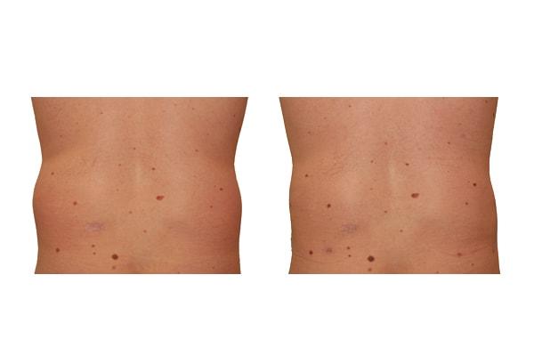 Rückenansicht eines Ergebnisses und der Ausgangssituation einer Fettabsaugung an Bauch und Hüften.