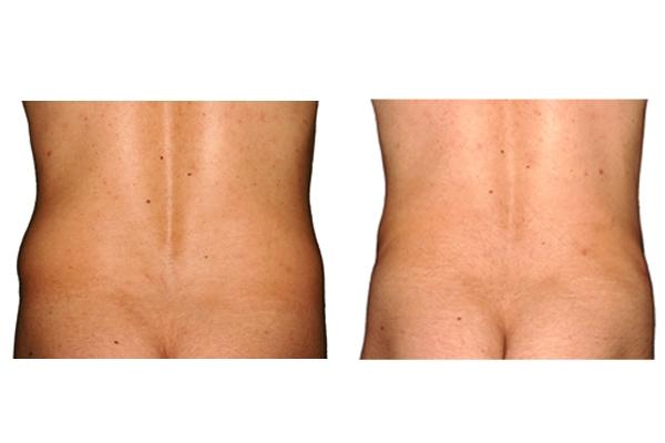 Ansicht der Rückseite eines Patienten nach einer Fettabsaugung an Hüften und Bauch.