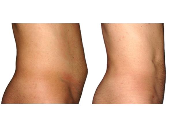 Vorher Nachher Bild einer Fettabsaugung an Bauch und Hüften.