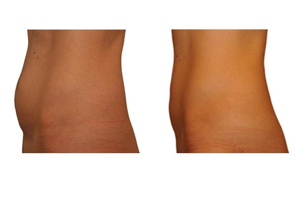 Fettabsaugung Bauch, Waden, Knie und Oberschenkel Ergebnis