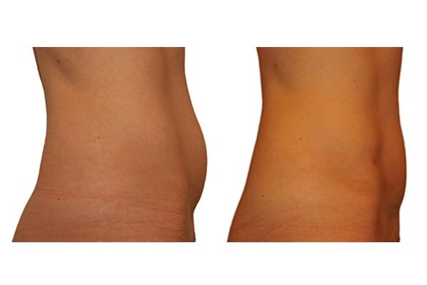 Ergebnis einer Fettabsaugung am Bauch