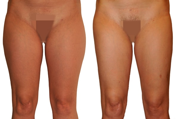 Ergebnis einer Fettabsaugung Bauch, Waden, Knie und Oberschenkel.