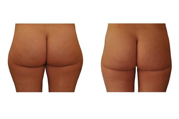 Fettabsaugung Hüfte und Oberschenkel