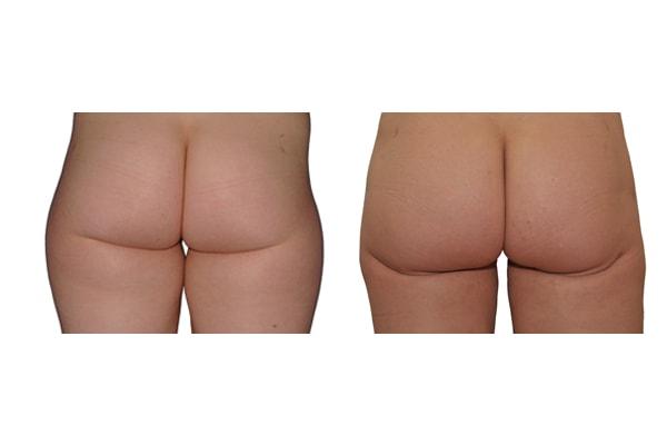 Fettabsaugung Hüfte und Oberschenkel Ergebnis