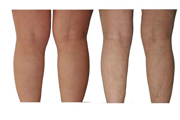 Fettabsaugung Waden Knie Oberschenkel Ergebnis