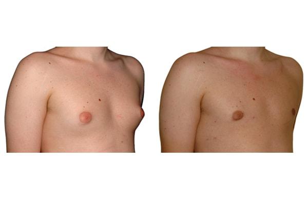 Beispiel einer Gynäkomastie Operation