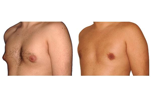Ursprüngliche Brust und Ergebnis nach der Gynäkomastie Operation.