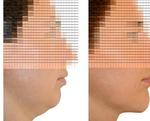 Kinnvergroesserung Halsstraffung Fettabsaugung 1b