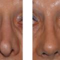 Nasenspitzendeformität :: Korrektur durch Abtrennung der konkaven (eingesunkenen) seitlichen Anteile der Flügelknorpel, Rotation um 180° und Annähen an die Dome.