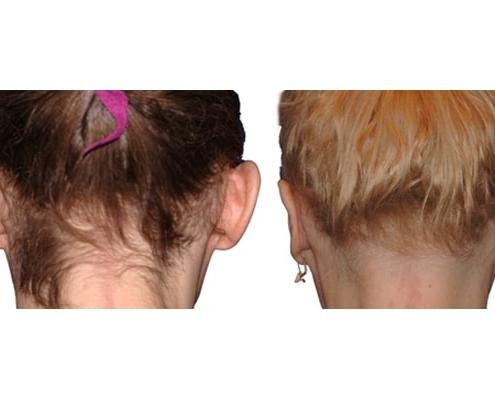 Ohren Operation   Rechtes Bild 1,5 Jahre Nach Der OP