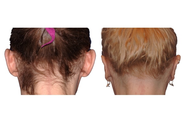 Ohrenkorrektur mit dem finalen Ergebnis 1,5 Jahre nach dem Eingriff.