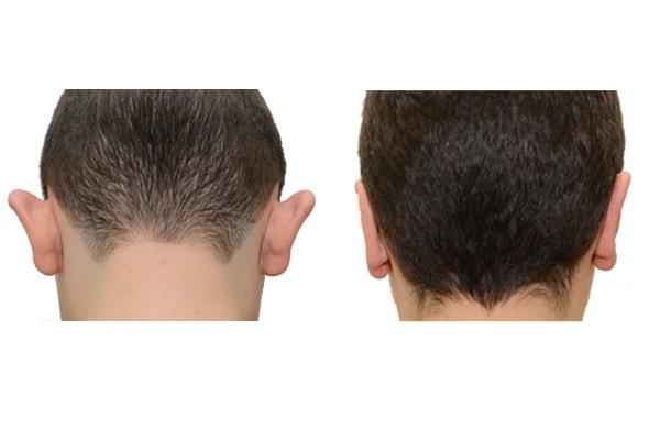 Ohren anlegen vor und nach der Op.