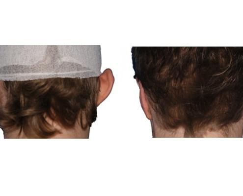 Ohrkorrektur Vorher Nacher Bild 60 Tage Nach Der Operation