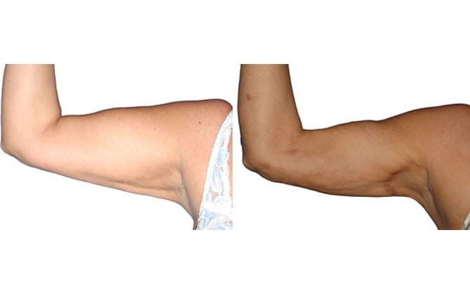 Ergebnis einer Oberarmstraffung.
