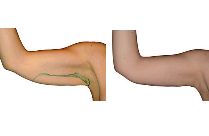 Ausgangssituation und Ergebnis einer Straffung am Oberarm nach 1,5 Jahren.