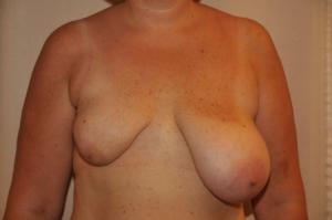 Zustand nach Teilentfernung der rechten Brust und Bestrahlung. Die Patientin leidet unter unerträglichen Schmerzen.