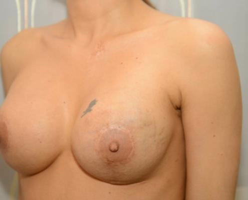 Zustand nach Brustvergrößerung und Bruststraffung vor Jahren im Ausland durchgeführt in der linken Brust ist Brustkrebs gefunden worden. Patientin wünscht OP unter möglichsten ästhetischen Erhalt der Voroperation. Dr. Turkof