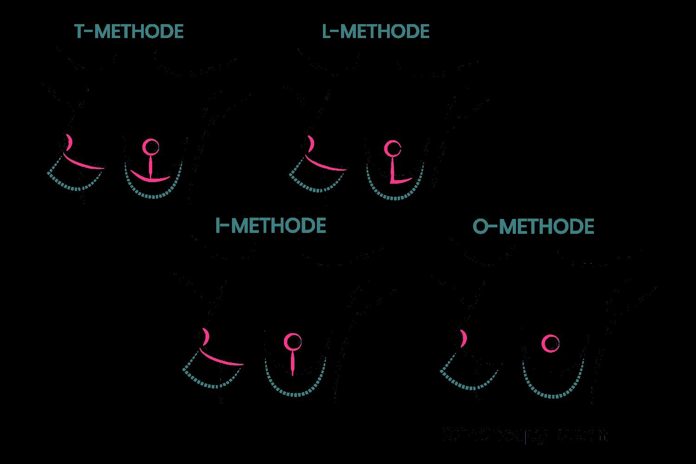 Um die Brust zu straffen, gibt es vier Schnittechnicken die je nach Brustbeschaffenheit eingesetzt werden.