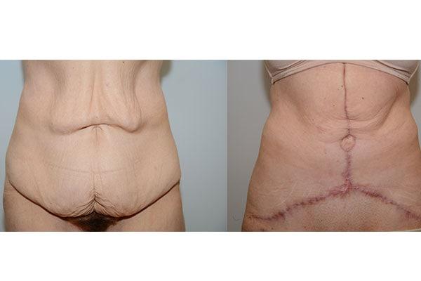 Bauchdeckenstraffung nach massiver Gewichtsabnahme.