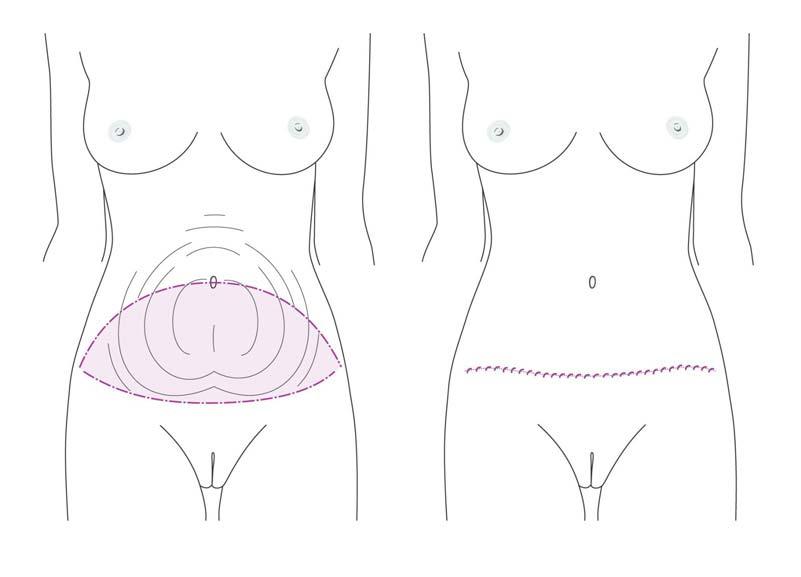 Die Schnittführung bei einer Bauchdeckenstraffung