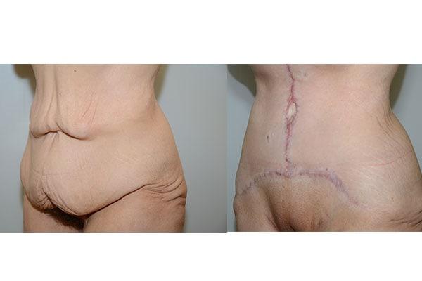 Bauchdeckenstraffung vorher nachher Beispiel